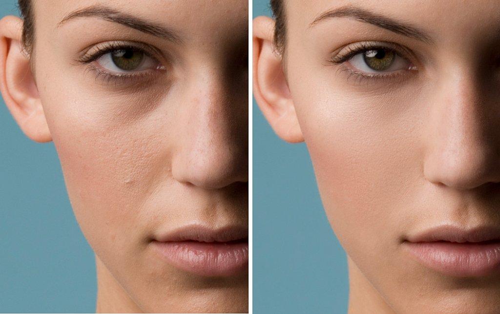 skin-retouching.jpg